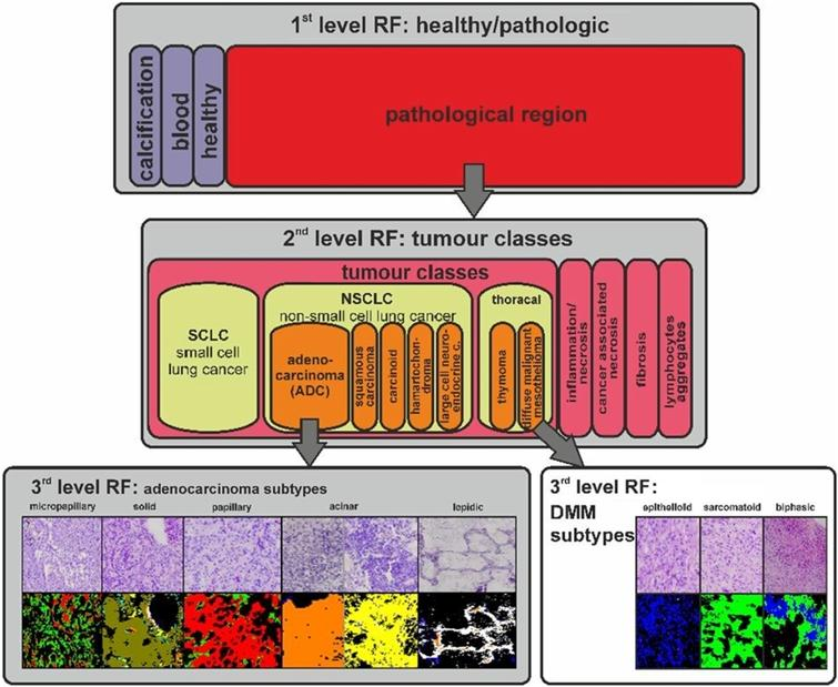 Schematic workflow of the differential FTIR imaging tissue characterization for thoracal tumours. Tissue annotation by FTIR imaging for lung tumours and thoracal tumours is illustrated. In a first classifier, the pathologic regions were identified. In a second classifier, the different tumour classes of the pathologic region are differentiated. Finally, in the third classifier, a differential diagnosis of the tumour subtypes is provided. The classifiers for lung tumours and thoracal tumours (shaded in grey) were previously published by Großerueschkamp, Kallenbach-Thieltges et al. [10]. The classification of DMM subtypes was previously published by Großerueschkamp et al. [9]. The proof that differential diagnostic is possible with IR imaging was an important step for the label-free digital pathology.